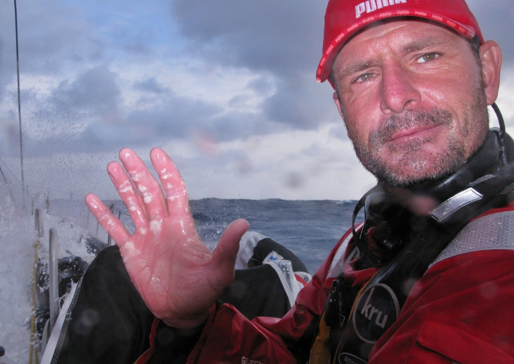 Volvo Ocean Race, 2008-2009, PUMA Ocean Racing, il mostro, Onboard, Racing Crew, Sidney Gavignet, Medical, Injury